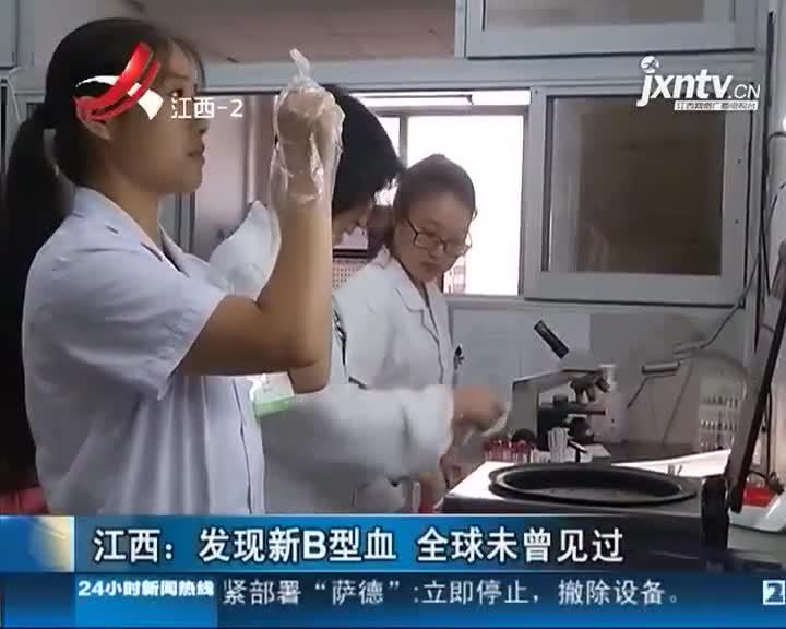 江西发现一例新B型血 全球未曾见过